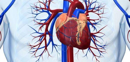 Ischemic heart disease is major health burden worldwide