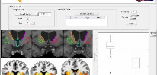 Detecting neurodegeneration biomarkers through magnetic resonance imaging