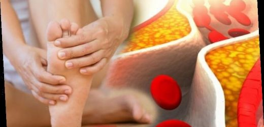 Have you been experiencing cold feet? The lesser-known warning sign of high cholesterol