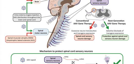 Researchers develop approach to prevent toxicity tied to neurological gene therapy