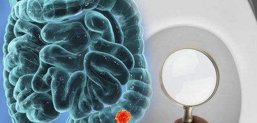 Bowel cancer: Spotting narrower stools than normal could indicate the deadly disease