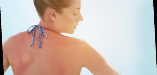 What exactly does the sun do to your skin?