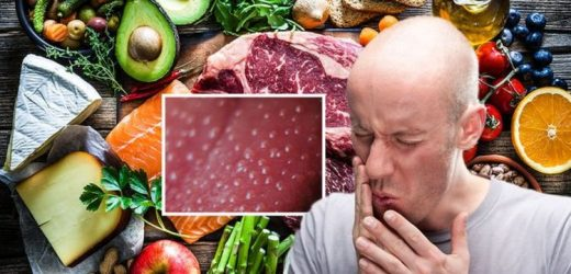 Vitamin B12 deficiency symptoms: The three main signs on your tongue