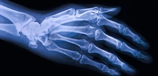 Research shows the effectiveness of a digital healthcare treatment for osteoarthritis