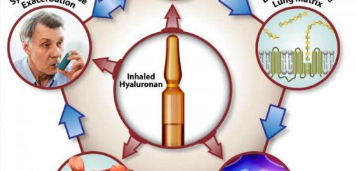 Study shows hyaluronan is effective in treating chronic lung disease
