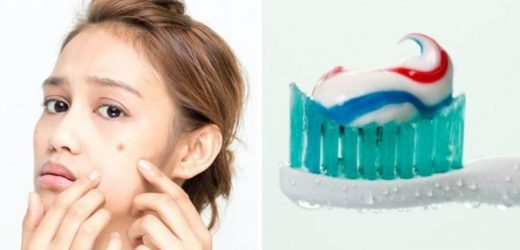 Does toothpaste get rid of spots? The truth behind the DIY skincare 'hack'