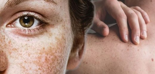 Skin cancer: Do you freckles look this? Three danger signs to look out for warning of your