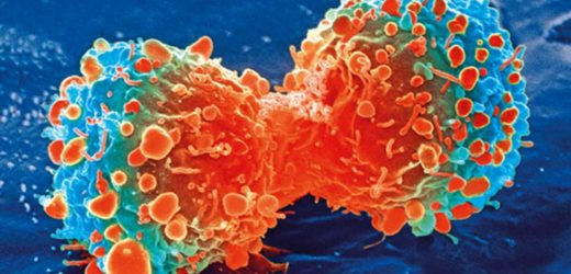 Future of immunotherapy could be 'off-the-shelf' treatments