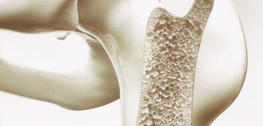 Medical practitioners use octacalcium phosphate to improve bone repair
