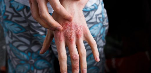 Will Psoriasis Patients Embrace Proactive Topical Therapy?