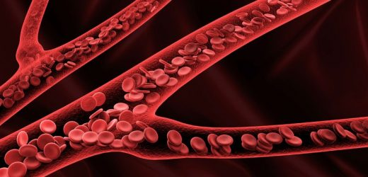 Docs Debate Blood Thinners to Prevent Clots After C-Section