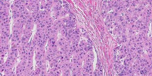 Toward the first drug to treat a rare, lethal liver cancer