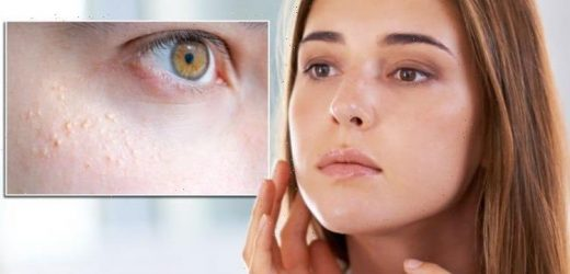 White spots on skin: What are they? Risk of inflammation if left untreated