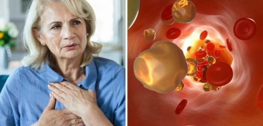 Atherosclerosis symptoms: Common signs of the artery condition – are you at risk?