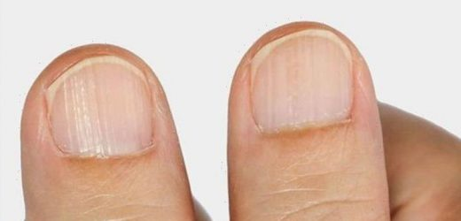 The 5 signs in your nails you have a vitamin deficiency – from white spots to grooves