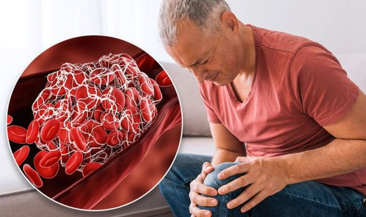 Blood clot symptoms: The marking on your leg that could signal deep vein thrombosis
